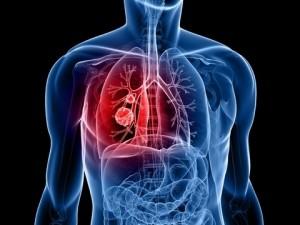 LungCancer_dreamstime_11954226