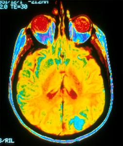 brain-MRI-328
