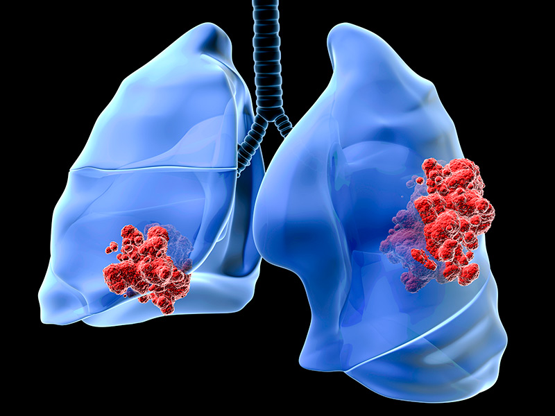 is_150112_lung_cancer_800x600