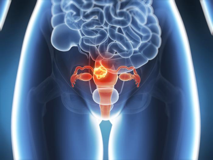 cancer-of-the-uterus