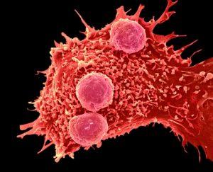 20161117_web_c0288799-cancer_cell_and_t_lymphocytes_sem-spl